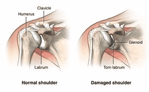 Shoulder Dislocation Types, Causes, and Treatment