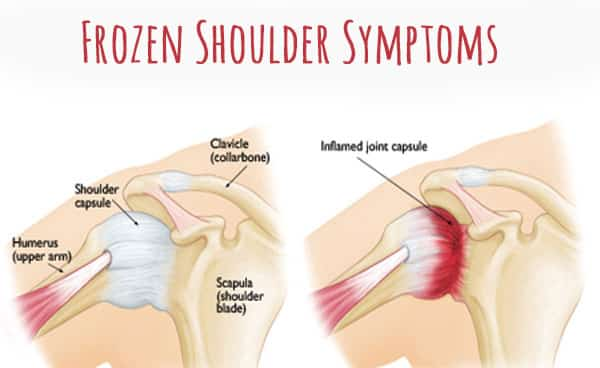 What is Frozen Shoulder? What Actually Happens Internally?