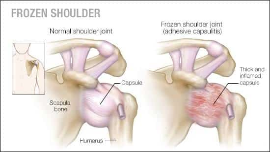 How To Fix The Pain and Dysfunction Of A Frozen Shoulder?
