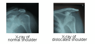 Dislocated Shoulder Symptoms & Causes