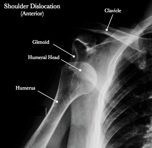 The Most Common Shoulder Dislocation Is: