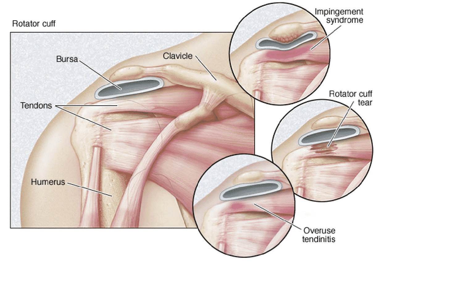 Causes and Symptoms of Rotator Cuff Problems