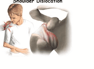Contact Dr Chandra Sekhar. B, Shoulder surgeon performs joint dislocation treatment in Hyderabad