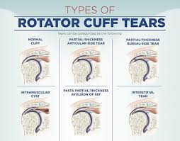 Contact Dr Chandra Sekhar. B shoulder surgeons at Hyderabad Shoulder Clinic for Rotator cuff problems
