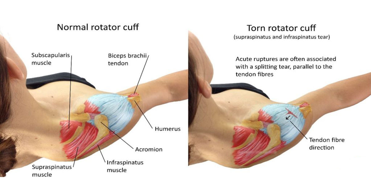 Make an appointment for rotator cuff surgery in Hyderabad by Dr Chandra Sekhar. B, Best Orthopedic Doctor in Hyderabad