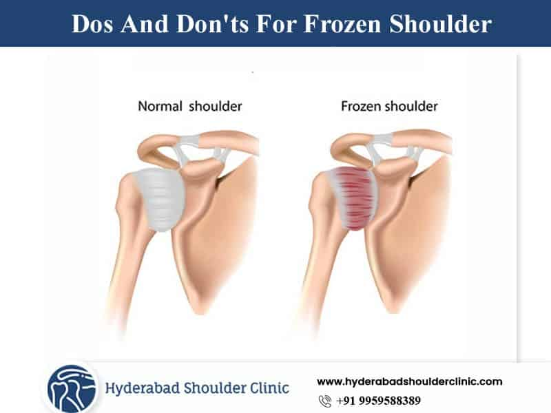 Things You Need to Know if You Have Frozen Shoulder by Dr. Chandra Shekar B, One of the best-Dislocated shoulder Surgeons in Hyderabad