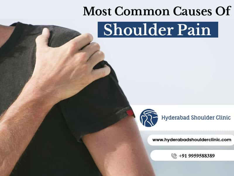Get now Shoulder pain treatment in Hyderabad by Dr. Chandra Skehar, the best shoulder specialist in Hyderabad
