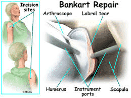 Best Arthroscopic Bankart Repair surgery technique by Dr. Chandra Sekhar, One of the best Orthopedic shoulder surgeons in Hyderabad