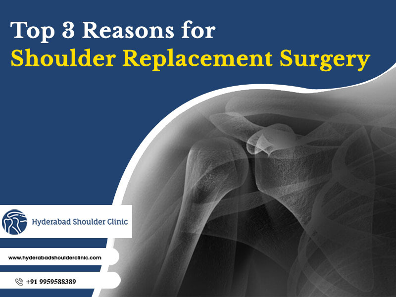 Consult Dr. Chandra Sekhar know the top 3 reasons for Shoulder Replacement surgery, One of the best doctors in shoulder joints replacements in Hyderabad