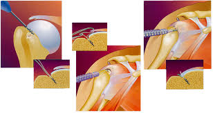 Contact Dr. Chandra Sekhar for the best Arthroscopic Shoulder Surgery, One of the best orthopedic surgeons in Hyderabad