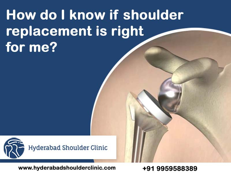 A successful is shoulder replacement surgery clinic in Hyderabad, shoulder fracture treatment near Gachibowli