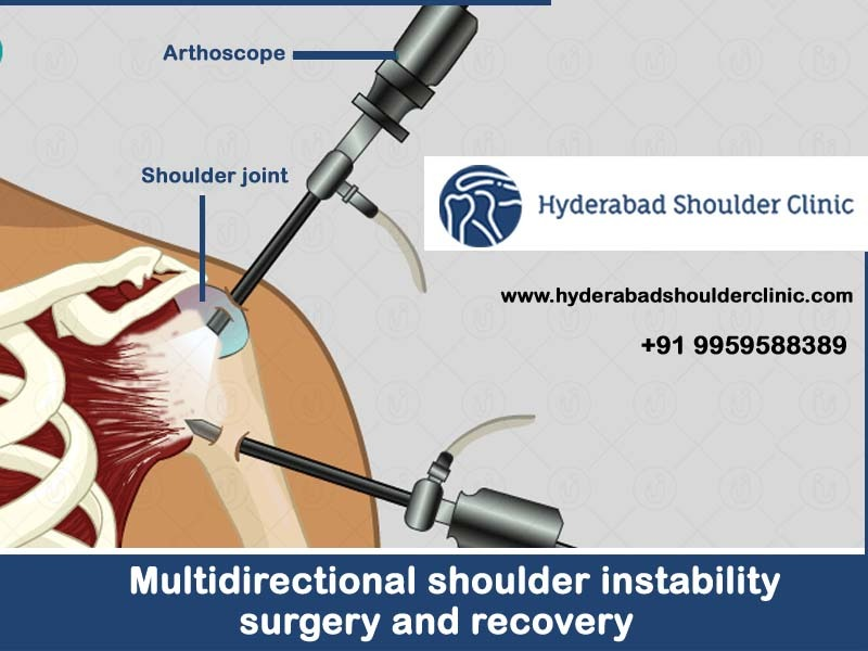 Multidirectional Shoulder Instability Surgery And fast Recovery time at Hyderabad Shoulder Clinic, One of the best Shoulder joint replacement surgery centers in Hyderabad