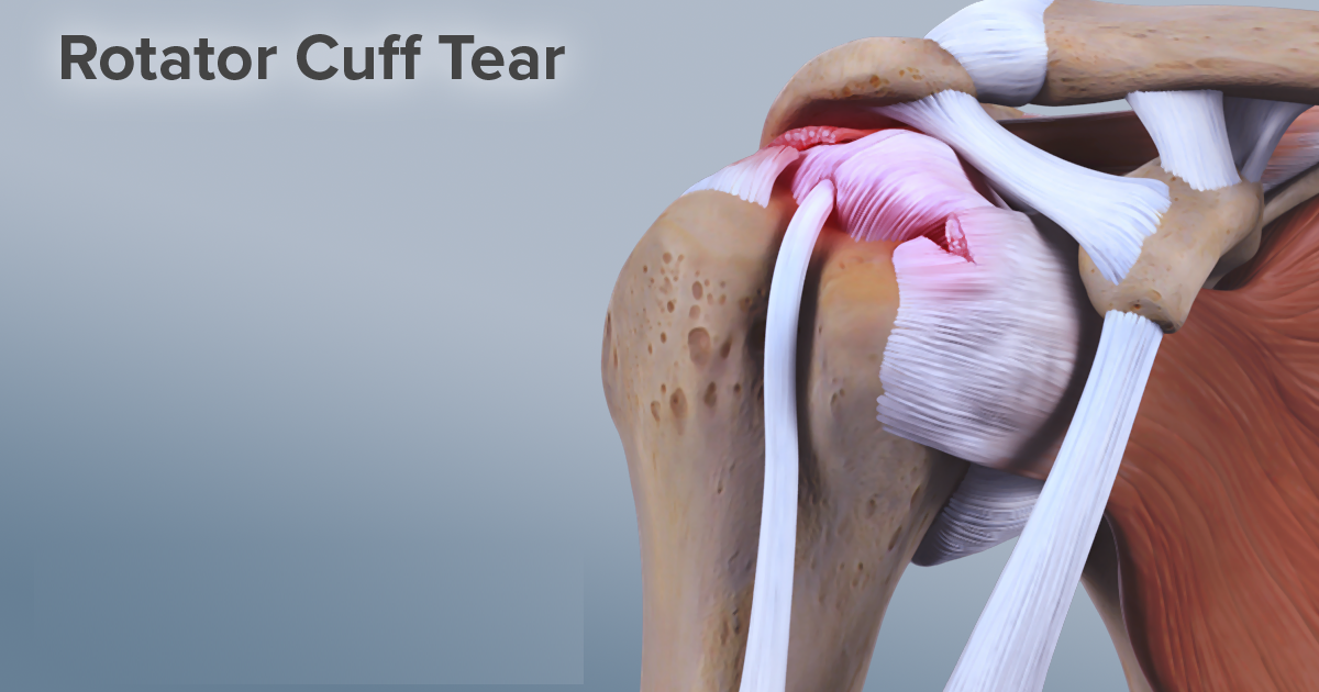 Contact Dr. Chandra Sekhar to know the cost of Rotator cuff surgery in Hyderabad, shoulder Surgeon in Hyderabad