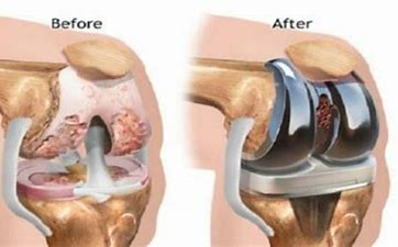Know the shoulder replacement success rate at Hyderabad Shoulder Clinic, the best orthopedic surgeon for shoulder surgery near Gachibowli