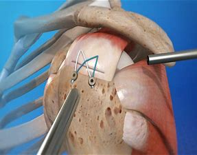 Contact Dr. Chandra Sekhar to know the Rotator cuff surgery recovery time, rotator cuff physical therapy near Gachibowli