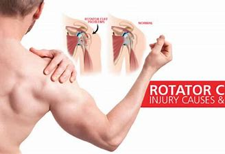 Know the main causes of rotator cuff tears by Dr. Chandra Sekhar, One of the best shoulder fracture specialist near Hyderabad