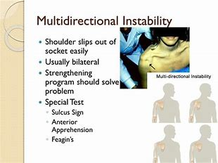 All types of shoulder instability surgery in Hyderabad, Traumatic shoulder instability doctor near Hyderabad