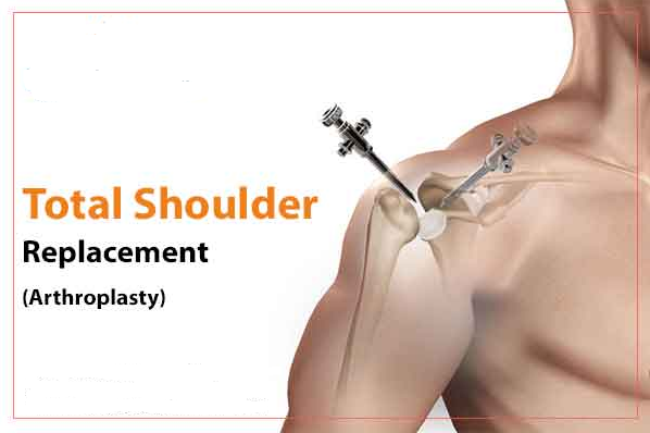 Total shoulder replacement surgery cost in Hyderabad India, best doctor for shoulder surgery near Kondapur