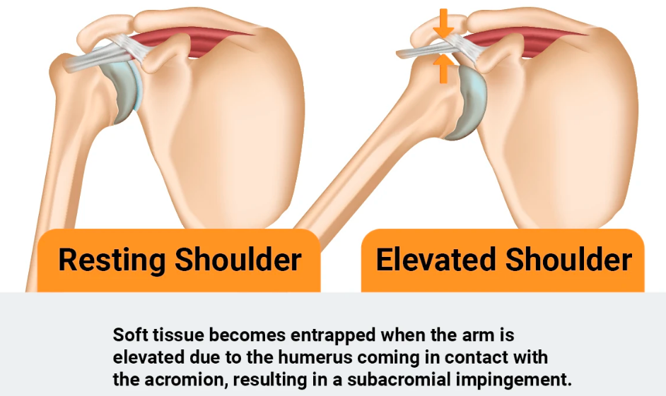 Consult Dr. Chandra Sekhar for Arthroscopic shoulder surgery in Hyderabad, One of the best Orthopedic shoulder surgeon near me