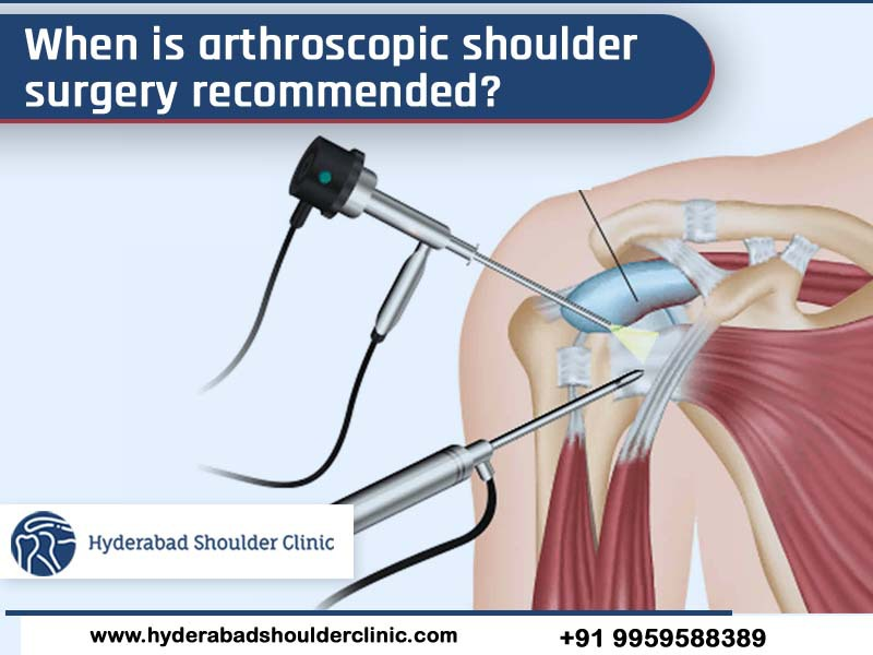 Get Arthroscopic Shoulder replacement surgery in Hyderabad, shoulder replacement specialist near me