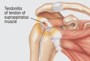 what happens if a dislocated shoulder goes untreated
