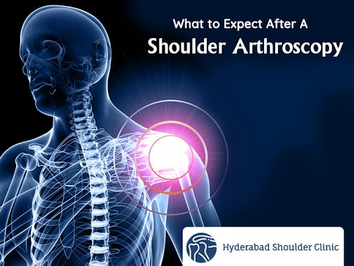 Overview: What to Expect After A Shoulder Arthroscopy For Rotator Cuff  Repair