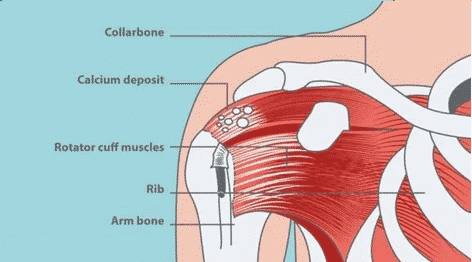 Is Rotator Cuff Surgery The Solution To My Shoulder Pain?