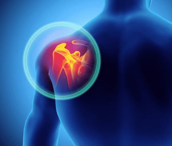 How To Get Rid Of Degenerative Diseases Of Shoulder Joints?