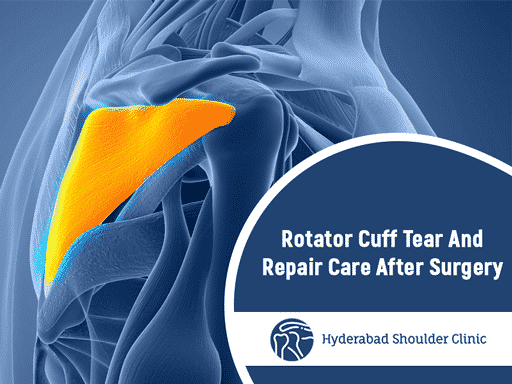Rotator Cuff Tear And Repair Care After Surgery