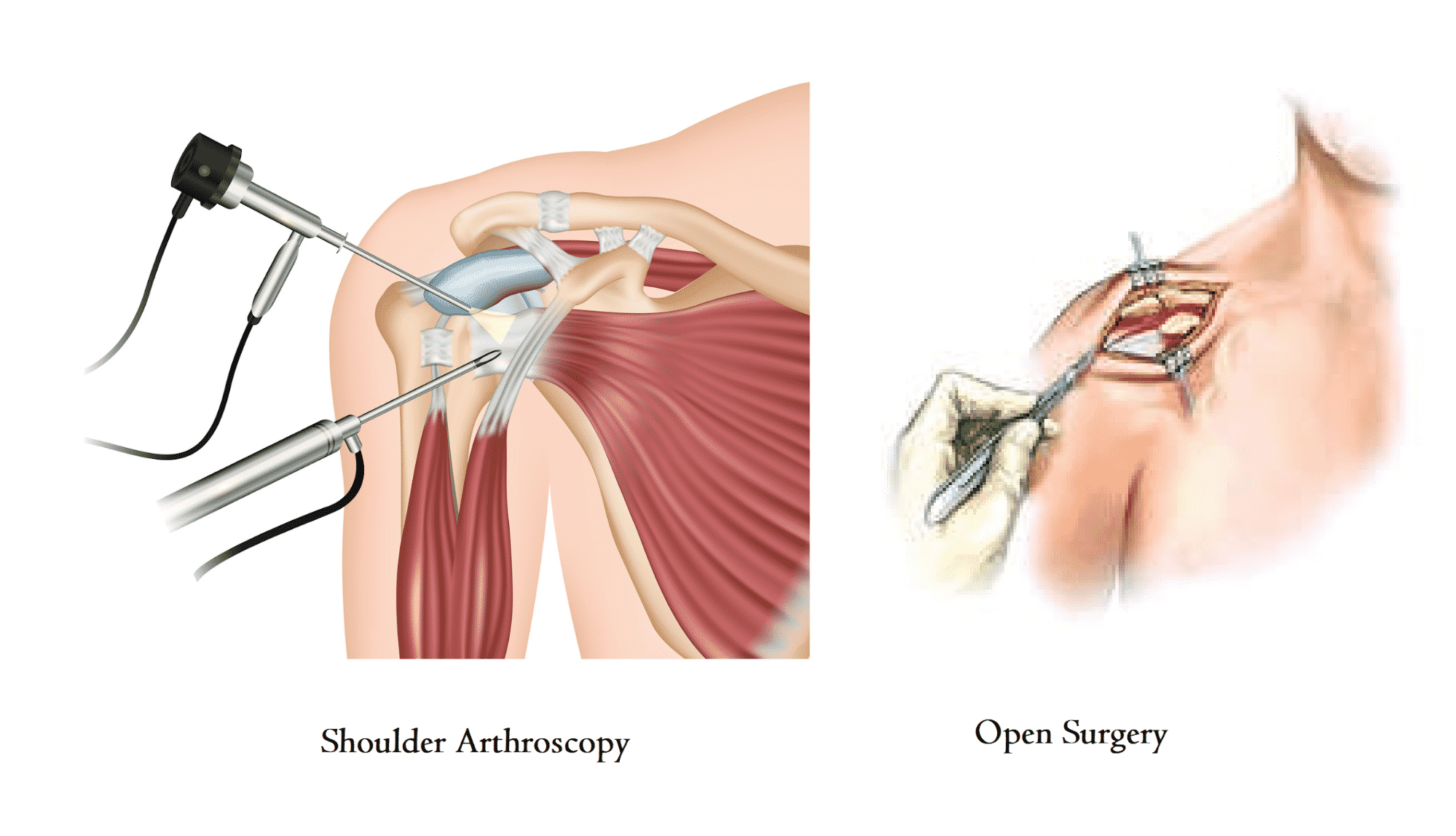 Arthroscopic Shoulder Surgery: How It's Different from Open Surgery?