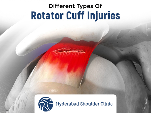 Contact Dr Chandra Sekhar. B best shoulder Surgeon in Hyderabad for Best Shoulder Rotator Cuff Injury Treatment In Hyderabad