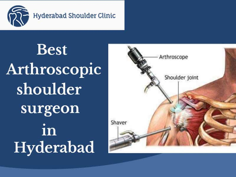 Best Arthroscopic Rotator Cuff Repair Doctor in Hyderabad, top-rated shoulder surgeons near me