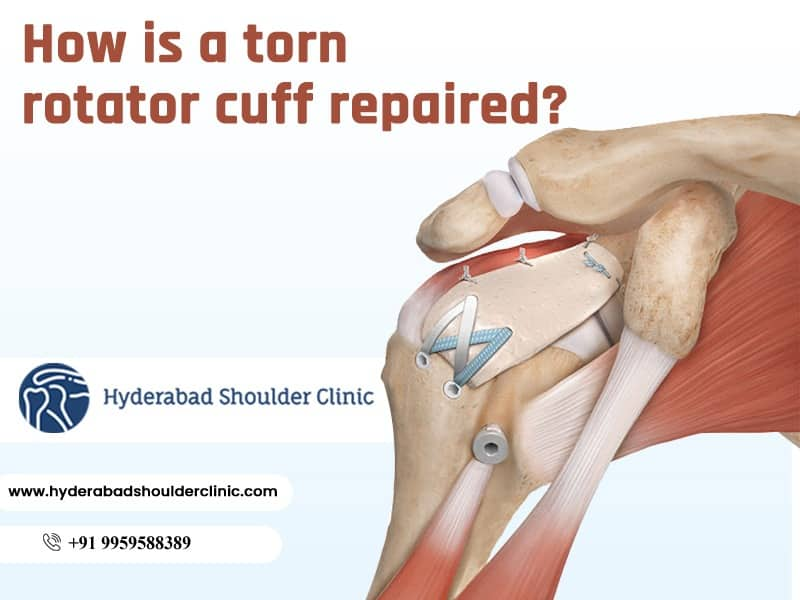 Contact Dr. Chandra Sekhar. B for Shoulder Rotator Cuff Injury Treatment, One of the best Shoulder surgery doctors In Hyderabad