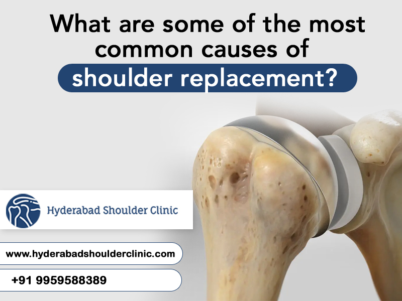 Consult to Dr. Chndra Sekhar to know the most common causes of Shoulder Replacement, One of the best Orthopedic surgeons in Hyderabad